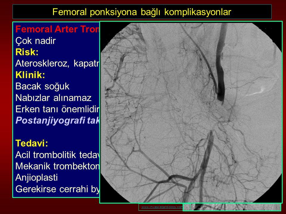 Femoral ponksiyona bağlı komplikasyonlar Femoral Arter Trombozu Çok nadir Risk: Ateroskleroz, kapatma cihazı, diseksiyon, hiperkoagubilite Klinik: Bac