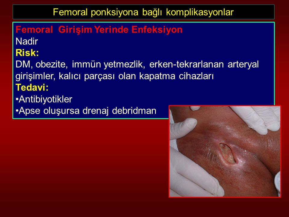 Femoral ponksiyona bağlı komplikasyonlar Femoral Girişim Yerinde Enfeksiyon Nadir Risk: DM, obezite, immün yetmezlik, erken-tekrarlanan arteryal giriş