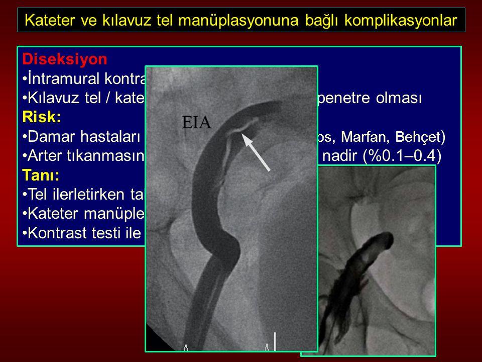 Kateter ve kılavuz tel manüplasyonuna bağlı komplikasyonlar Diseksiyon İntramural kontrast enjeksiyonu Kılavuz tel / kateter ucunun intima altına pene