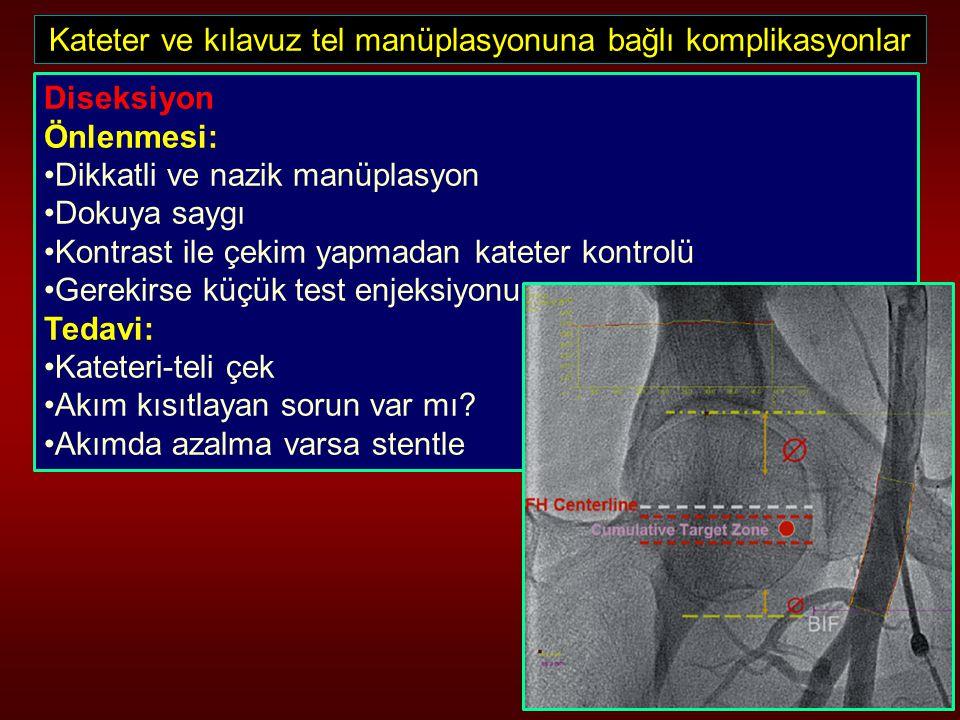 Kateter ve kılavuz tel manüplasyonuna bağlı komplikasyonlar Diseksiyon Önlenmesi: Dikkatli ve nazik manüplasyon Dokuya saygı Kontrast ile çekim yapmad