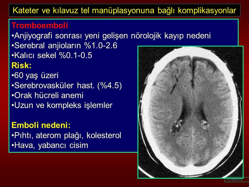 Kateter ve kılavuz tel manüplasyonuna bağlı komplikasyonlar Tromboemboli Anjiyografi sonrası yeni gelişen nörolojik kayıp nedeni Serebral anjioların %