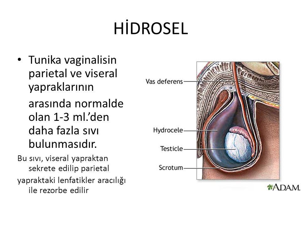 HİDROSEL Tunika vaginalisin parietal ve viseral yapraklarının arasında normalde olan 1-3 ml.'den daha fazla sıvı bulunmasıdır. Bu sıvı, viseral yaprak