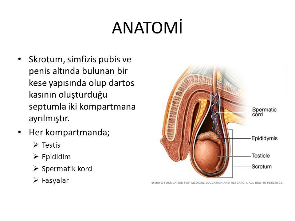 SEMPTOMLAR Varikosel genellikle asemptomatiktir İnfertilite nedeniyle tetkik edilen hastada rutin muayene sırasında tespit edilebilir Ağrı ve çekilme hissi vardır