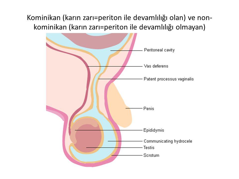 Kominikan (karın zarı=periton ile devamlılığı olan) ve non- kominikan (karın zarı=periton ile devamlılığı olmayan)
