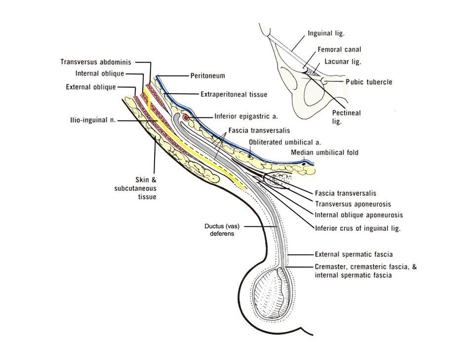 Pleksus Panpiniformise olan reflü 2 farklı mekanizma buna neden olur.
