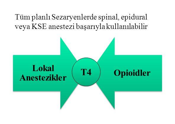 Tüm planlı Sezaryenlerde spinal, epidural veya KSE anestezi başarıyla kullanılabilir T4