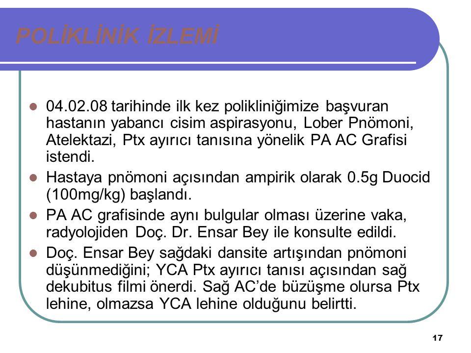 17 POLİKLİNİK İZLEMİ 04.02.08 tarihinde ilk kez polikliniğimize başvuran hastanın yabancı cisim aspirasyonu, Lober Pnömoni, Atelektazi, Ptx ayırıcı ta