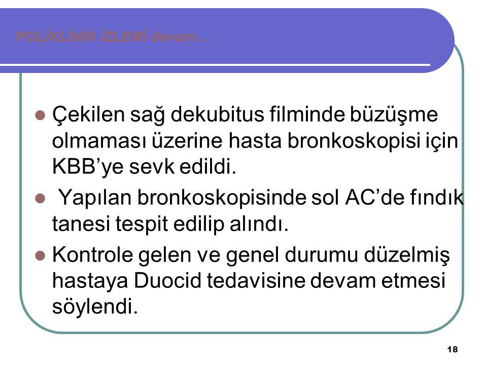 18 POLİKLİNİK İZLEMİ devam… Çekilen sağ dekubitus filminde büzüşme olmaması üzerine hasta bronkoskopisi için KBB'ye sevk edildi.