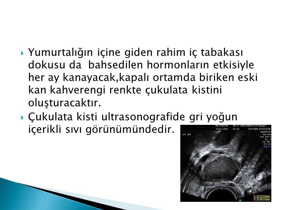  Yumurtalığın içine giden rahim iç tabakası dokusu da bahsedilen hormonların etkisiyle her ay kanayacak,kapalı ortamda biriken eski kan kahverengi re