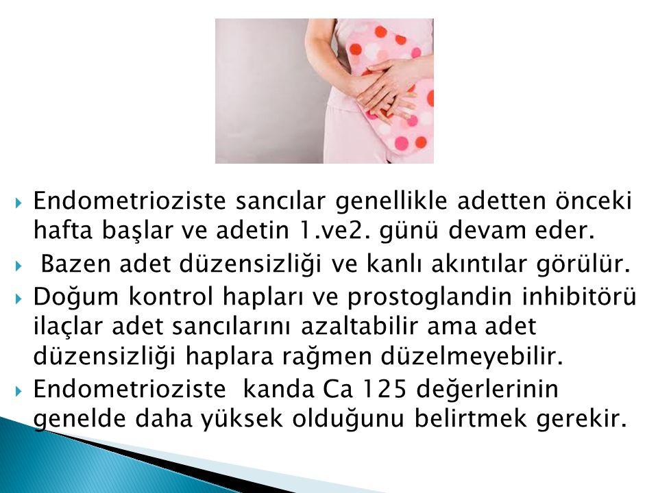  Endometrioziste sancılar genellikle adetten önceki hafta başlar ve adetin 1.ve2. günü devam eder.  Bazen adet düzensizliği ve kanlı akıntılar görül