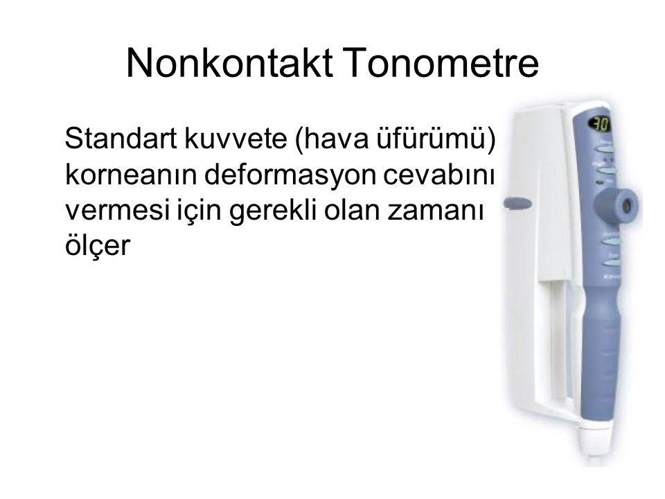 Nonkontakt Tonometre Standart kuvvete (hava üfürümü) korneanın deformasyon cevabını vermesi için gerekli olan zamanı ölçer