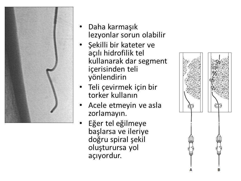 Daha karmaşık lezyonlar sorun olabilir Şekilli bir kateter ve açılı hidrofilik tel kullanarak dar segment içerisinden teli yönlendirin Teli çevirmek için bir torker kullanın Acele etmeyin ve asla zorlamayın.
