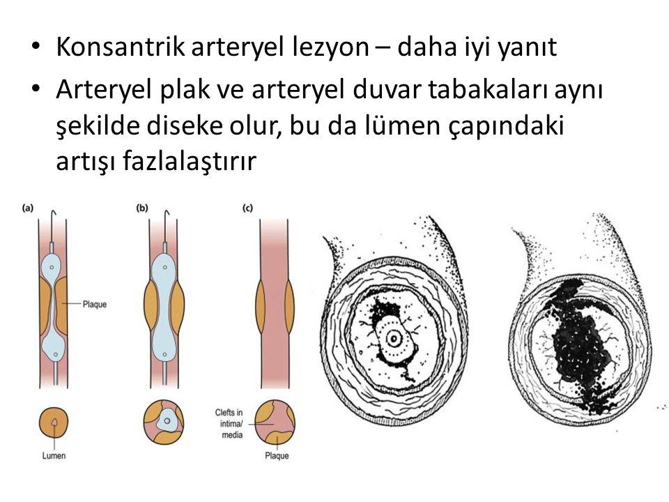 Konsantrik arteryel lezyon – daha iyi yanıt Arteryel plak ve arteryel duvar tabakaları aynı şekilde diseke olur, bu da lümen çapındaki artışı fazlalaştırır