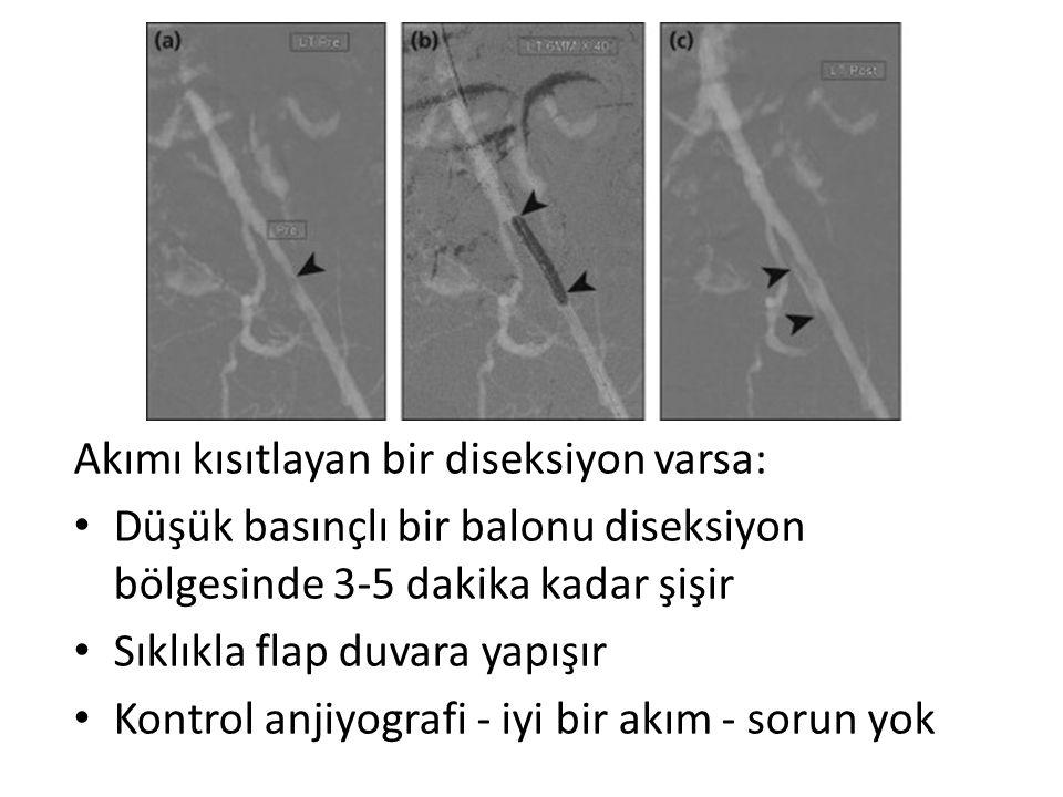 Akımı kısıtlayan bir diseksiyon varsa: Düşük basınçlı bir balonu diseksiyon bölgesinde 3-5 dakika kadar şişir Sıklıkla flap duvara yapışır Kontrol anjiyografi - iyi bir akım - sorun yok