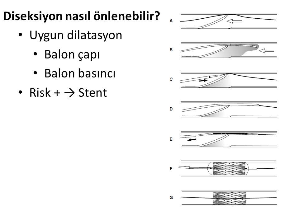 Diseksiyon nasıl önlenebilir? Uygun dilatasyon Balon çapı Balon basıncı Risk + → Stent
