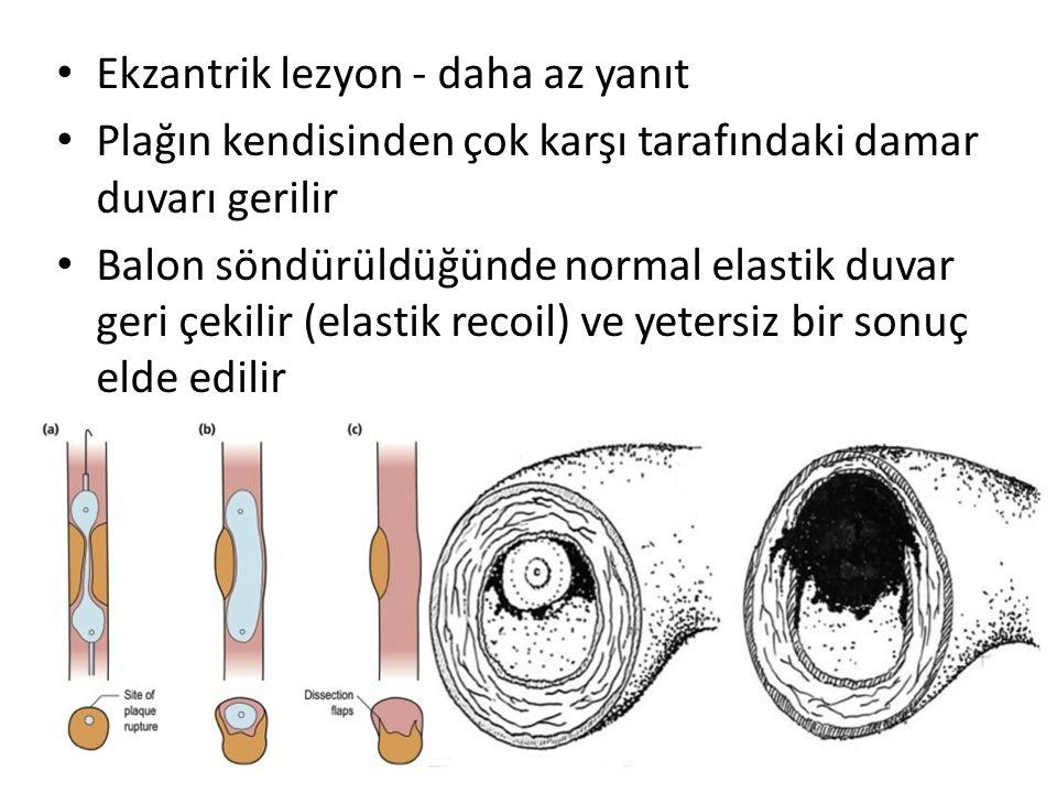 Ekzantrik lezyon - daha az yanıt Plağın kendisinden çok karşı tarafındaki damar duvarı gerilir Balon söndürüldüğünde normal elastik duvar geri çekilir