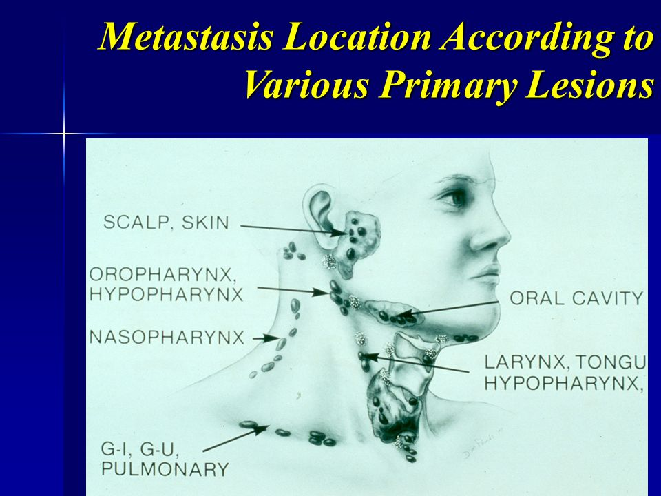 Metastasis Location According to Various Primary Lesions