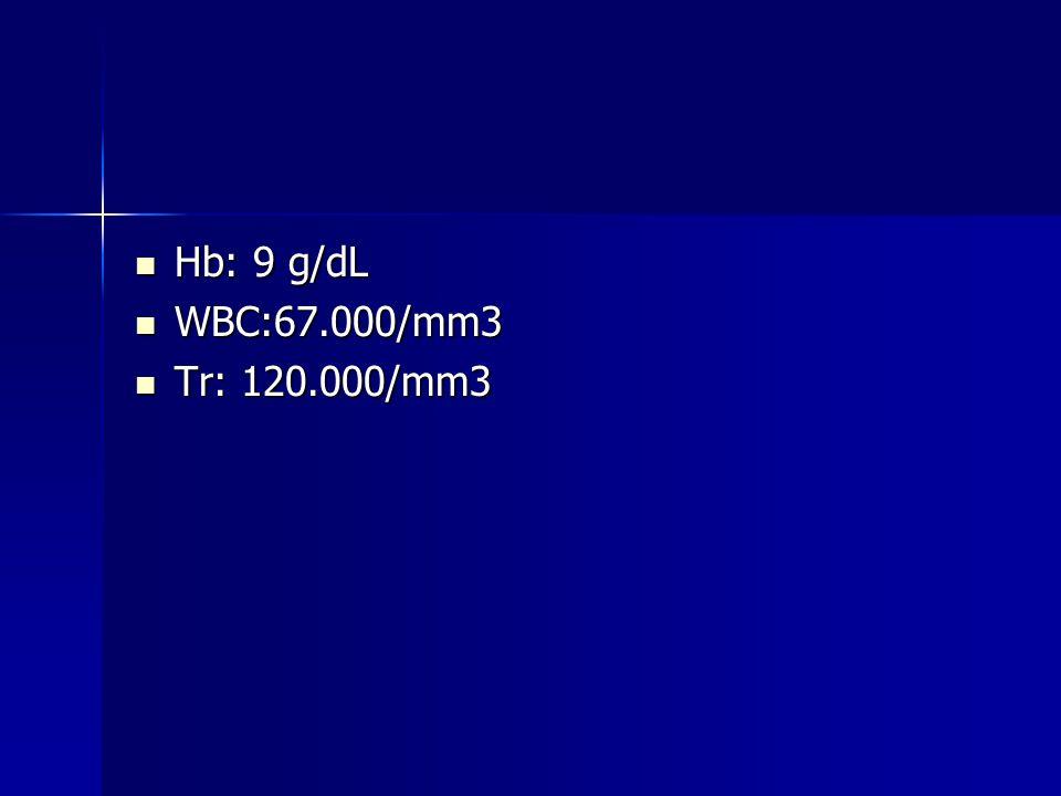 Hb: 9 g/dL Hb: 9 g/dL WBC:67.000/mm3 WBC:67.000/mm3 Tr: 120.000/mm3 Tr: 120.000/mm3