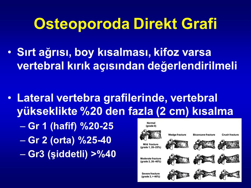 Osteoporoda Direkt Grafi Sırt ağrısı, boy kısalması, kifoz varsa vertebral kırık açısından değerlendirilmeli Lateral vertebra grafilerinde, vertebral yükseklikte %20 den fazla (2 cm) kısalma –Gr 1 (hafif) %20-25 –Gr 2 (orta) %25-40 –Gr3 (şiddetli) >%40