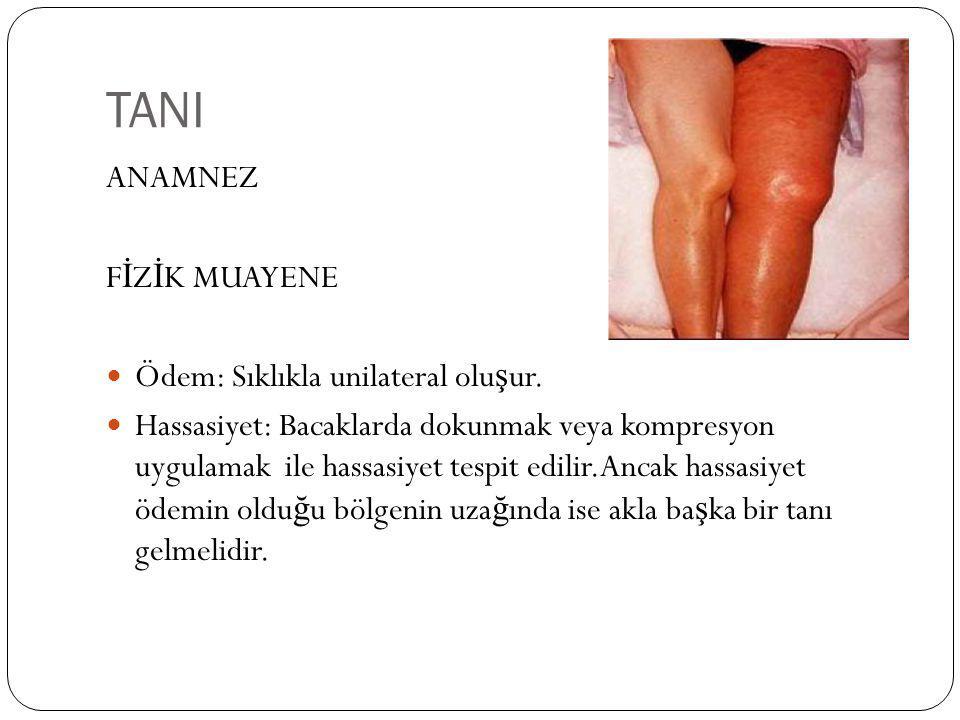 TANI ANAMNEZ F İ Z İ K MUAYENE Ödem: Sıklıkla unilateral olu ş ur. Hassasiyet: Bacaklarda dokunmak veya kompresyon uygulamak ile hassasiyet tespit edi