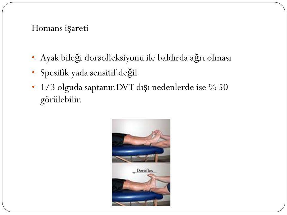 Homans i ş areti Ayak bile ğ i dorsofleksiyonu ile baldırda a ğ rı olması Spesifik yada sensitif de ğ il 1/3 olguda saptanır.DVT dı ş ı nedenlerde ise