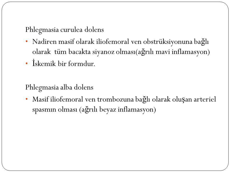 Phlegmasia curulea dolens Nadiren masif olarak iliofemoral ven obstrüksiyonuna ba ğ lı olarak tüm bacakta siyanoz olması(a ğ rılı mavi inflamasyon) İ