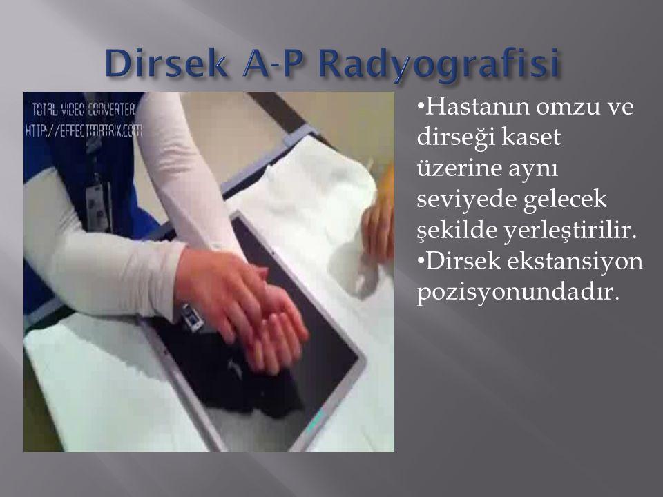 Hastanın omzu ve dirseği kaset üzerine aynı seviyede gelecek şekilde yerleştirilir. Dirsek ekstansiyon pozisyonundadır.