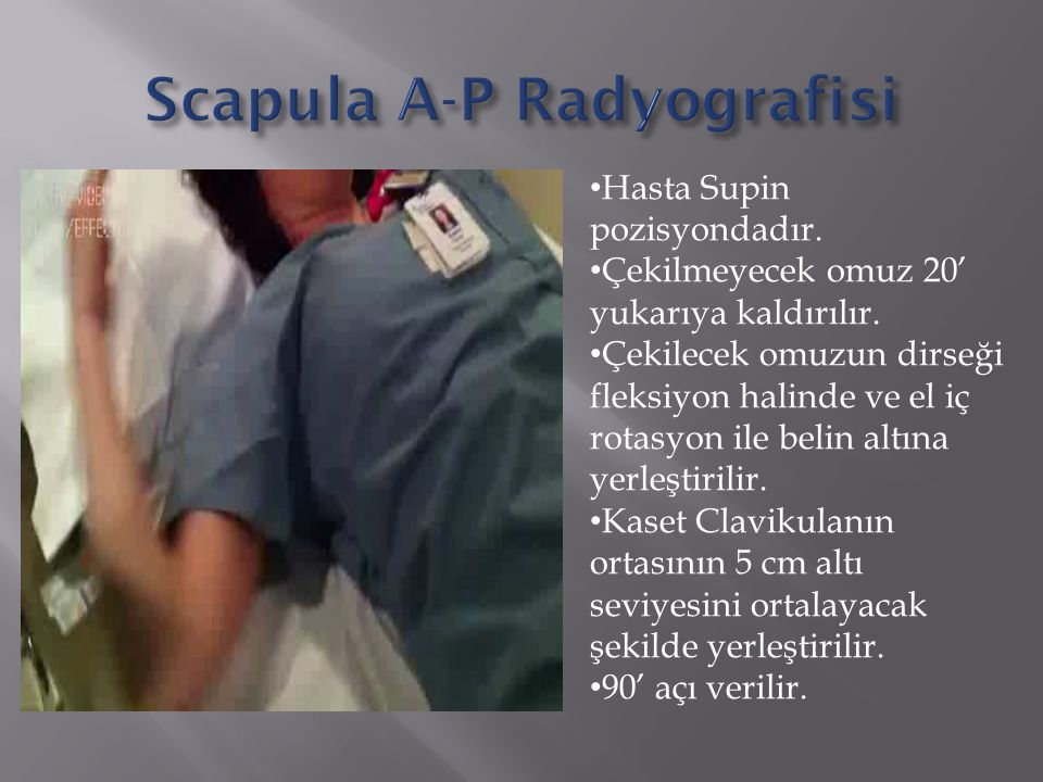 Hasta Supin pozisyondadır. Çekilmeyecek omuz 20' yukarıya kaldırılır. Çekilecek omuzun dirseği fleksiyon halinde ve el iç rotasyon ile belin altına ye