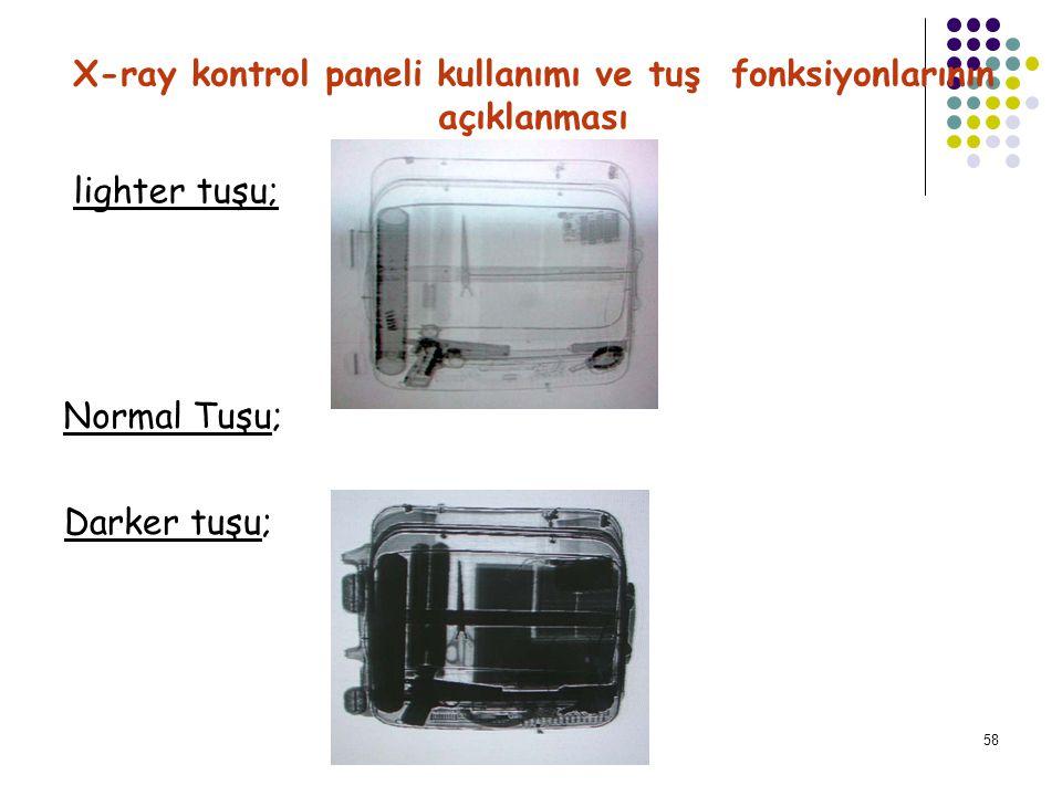 59 X-ray kontrol paneli kullanımı ve tuş fonksiyonlarının açıklanması Pseudo; Sadece siyah beyaz ekranda geçerlidir.