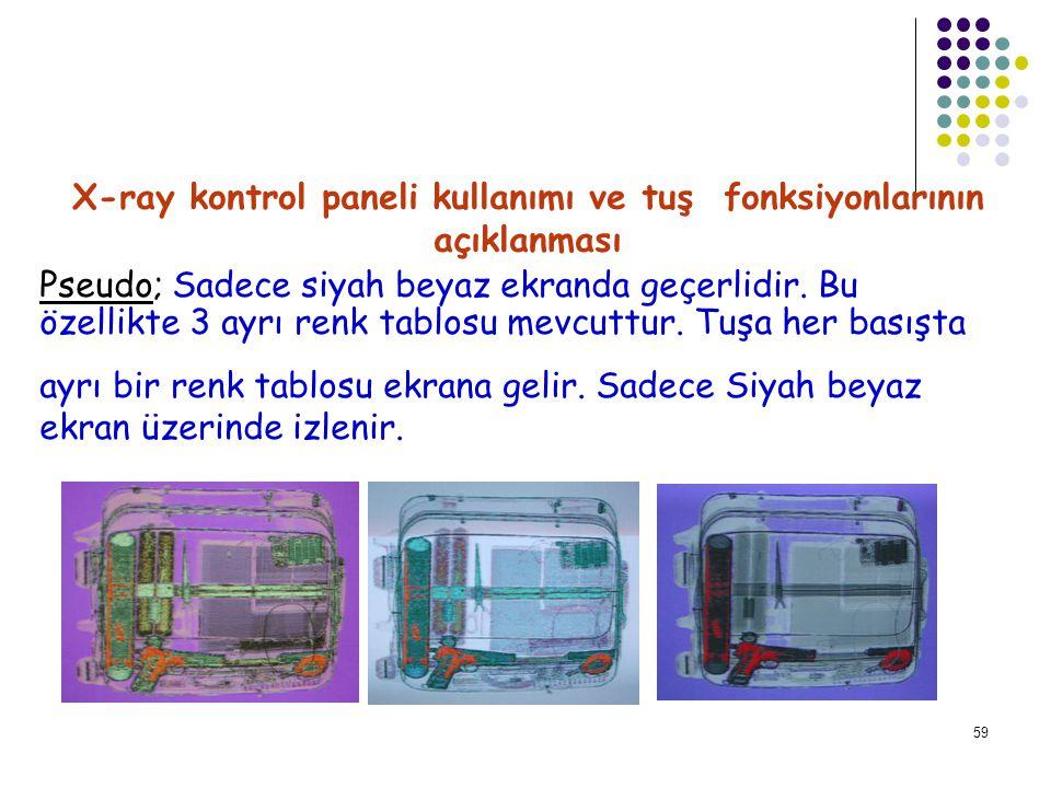 60 X-ray kontrol paneli kullanımı ve tuş fonksiyonlarının açıklanması İnorg.Strip;Org.Strip;