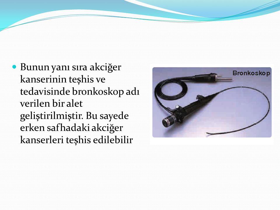 Bunun yanı sıra akciğer kanserinin teşhis ve tedavisinde bronkoskop adı verilen bir alet geliştirilmiştir. Bu sayede erken safhadaki akciğer kanserler