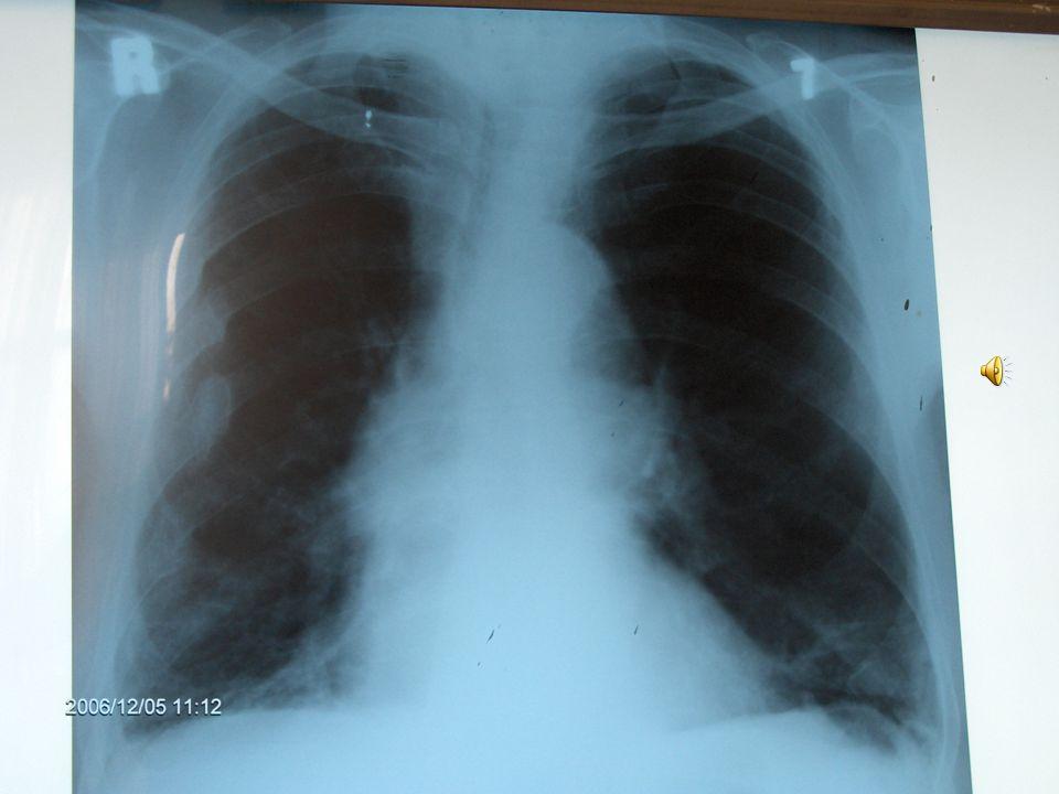 Sorular: Bu bulgular hangi hastalıkları düşündürür? Bu bulgular hangi hastalıkları düşündürür? Hangi tanı yöntemlerine başvurulmalı? Hangi tanı yöntem