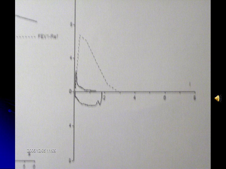 VOLÜMLER Pletismografik TLC: 7240 ml(%136) RV: 3780ml(%140) TLC: 7240 ml(%136) RV: 3780ml(%140) RV/TLC:%52 RV/TLC:%52