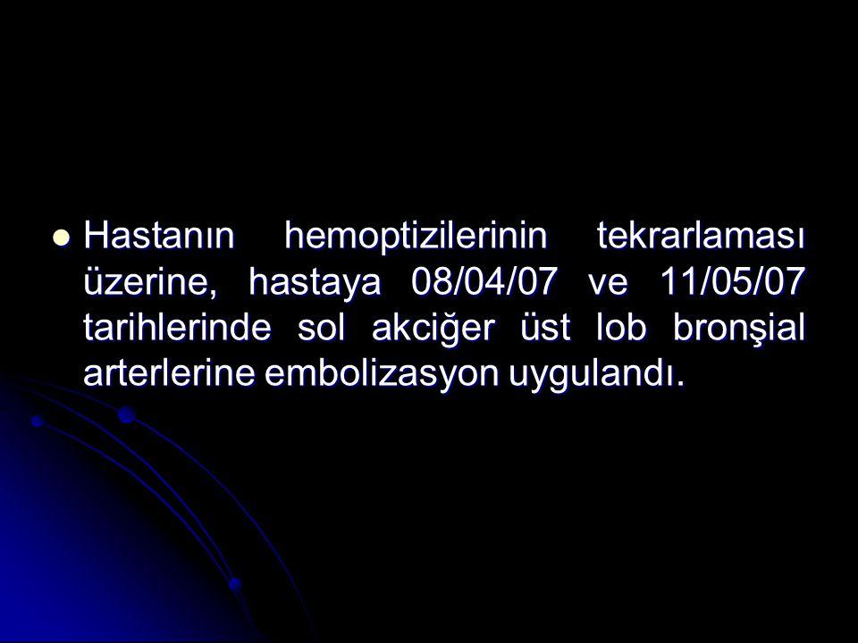 HEMOPTİZİ tedavisi ? HEMOPTİZİ tedavisi ? Bronşiyal arter embolizasyonu Bronşiyal arter embolizasyonu
