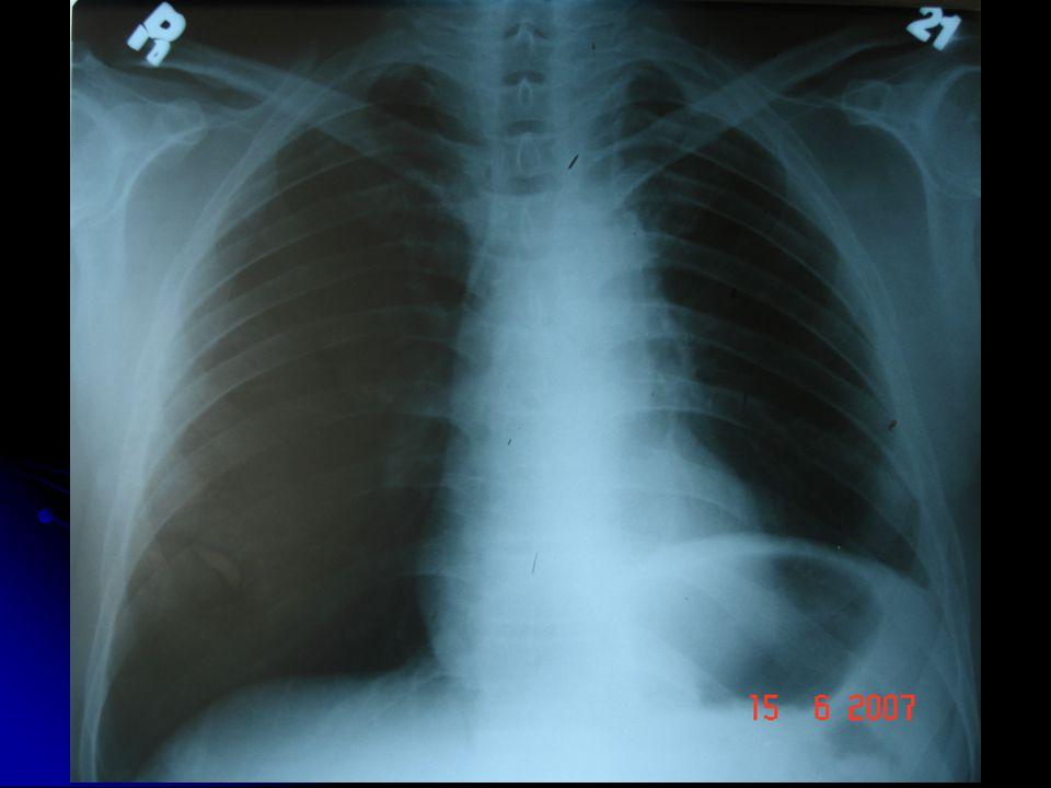 Hastaya 07-06-2007'de sol akciğer üst lobektomi uygulandı.