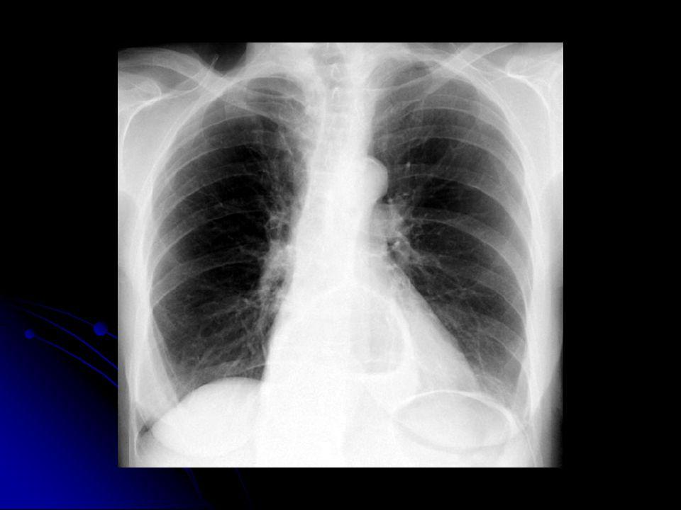 Sol akciğer alt alanında çok iyi tanımlanamayan ek sesler Sol akciğer alt alanında çok iyi tanımlanamayan ek sesler