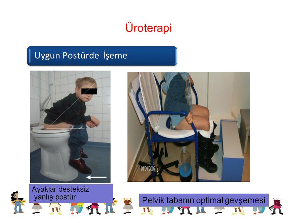 Üroterapi Uygun Postürde İşeme Ayaklar desteksiz yanlış postür Pelvik tabanın optimal gevşemesi
