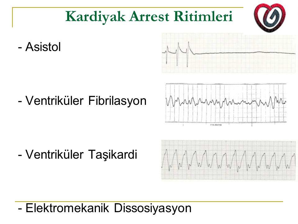 Kardiyak Arrest Ritimleri - Asistol - Ventriküler Fibrilasyon - Ventriküler Taşikardi - Elektromekanik Dissosiyasyon