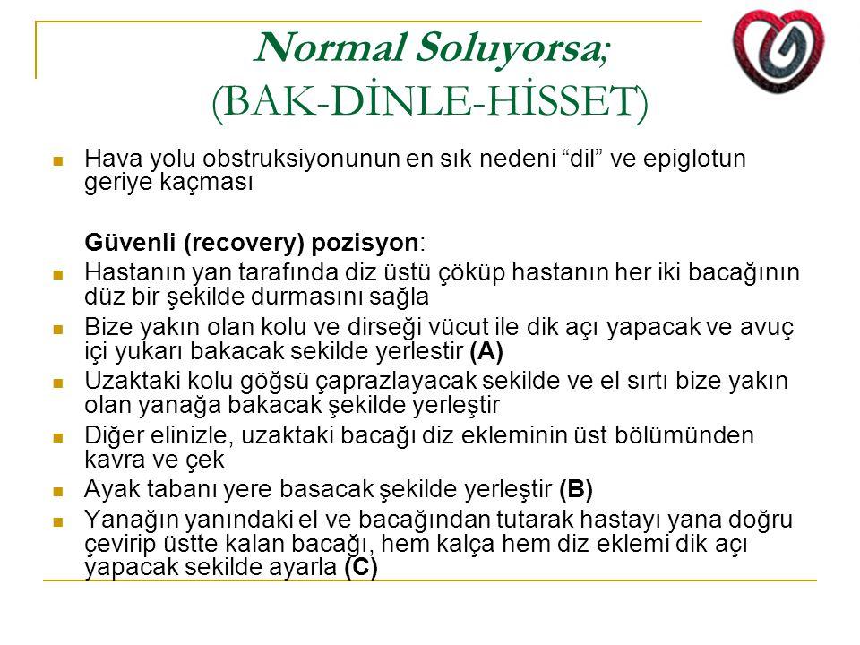 """Normal Soluyorsa; (BAK-DİNLE-HİSSET) Hava yolu obstruksiyonunun en sık nedeni """"dil"""" ve epiglotun geriye kaçması Güvenli (recovery) pozisyon: Hastanın"""