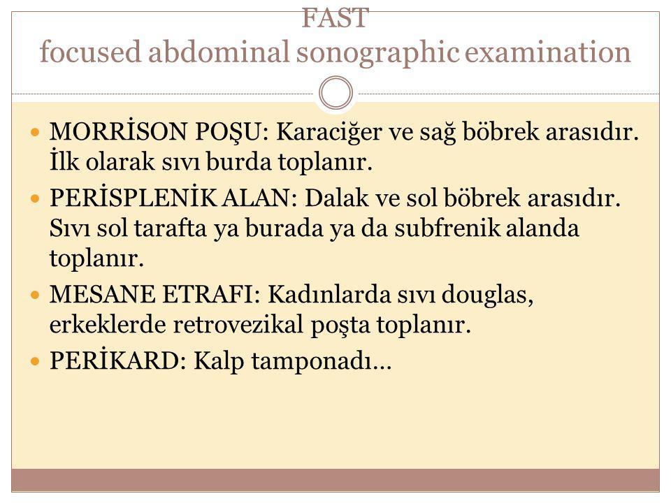 FAST focused abdominal sonographic examination MORRİSON POŞU: Karaciğer ve sağ böbrek arasıdır. İlk olarak sıvı burda toplanır. PERİSPLENİK ALAN: Dala