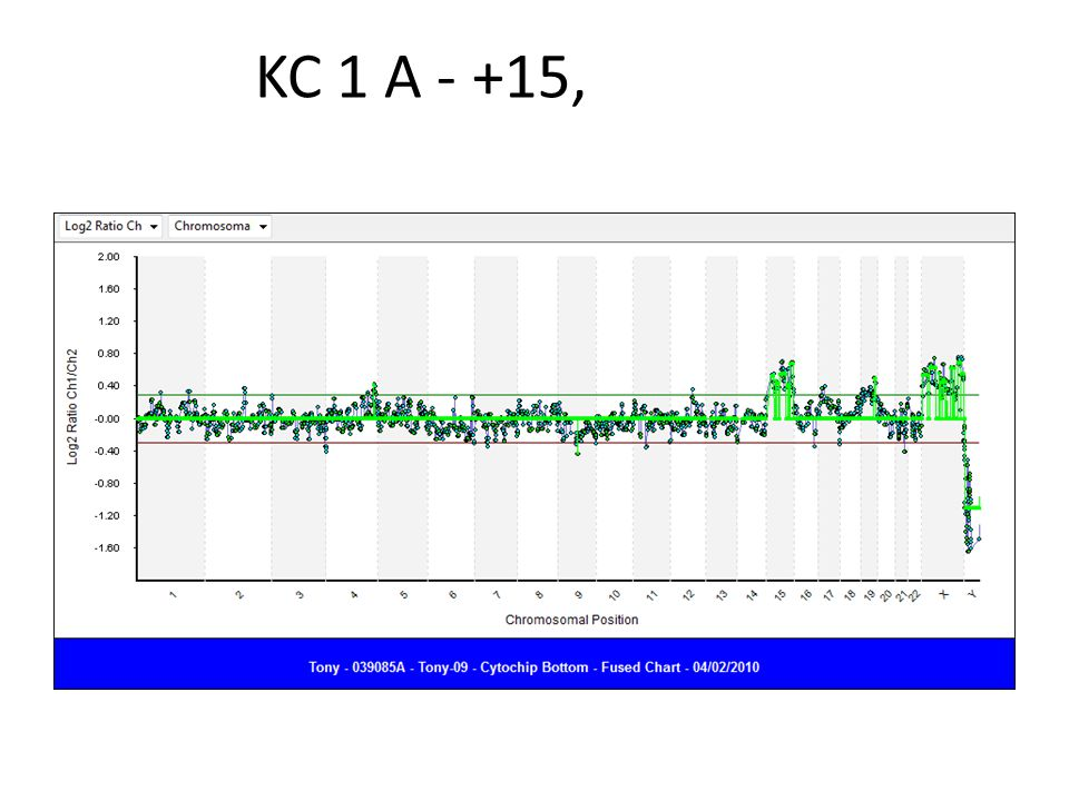 KC 1 A - +15,