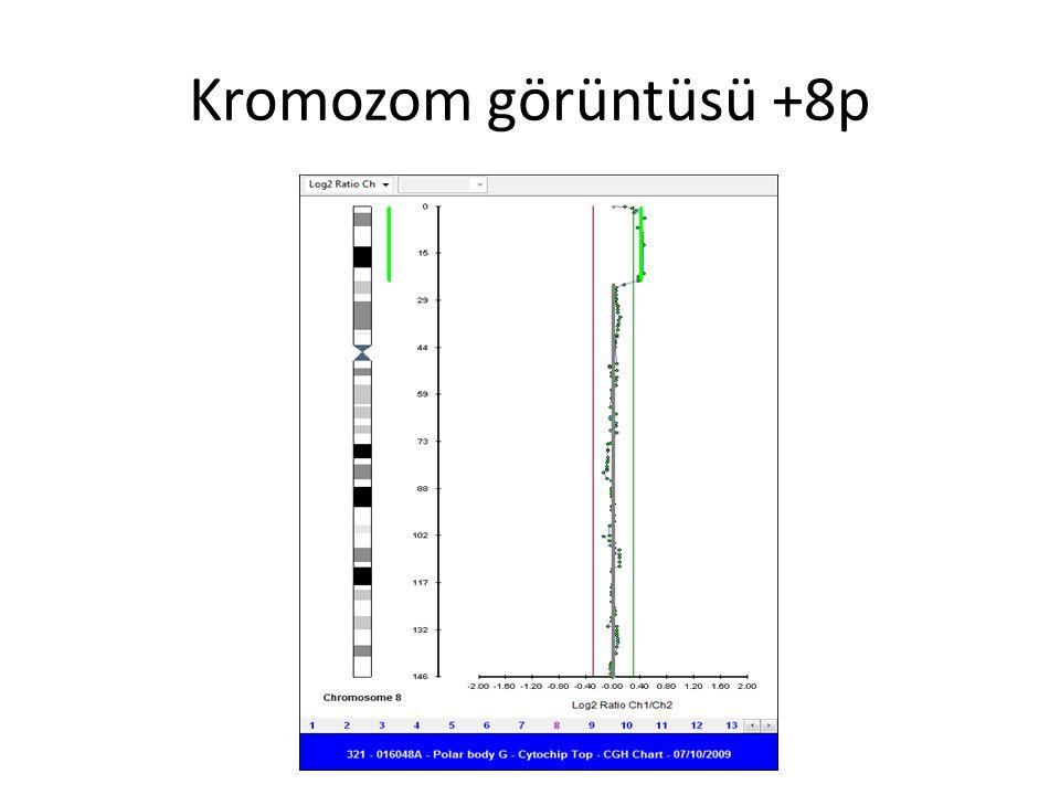 Kromozom görüntüsü +8p