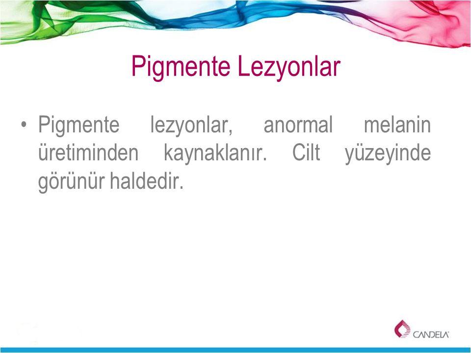 Pigmente lezyonlar, anormal melanin üretiminden kaynaklanır. Cilt yüzeyinde görünür haldedir.