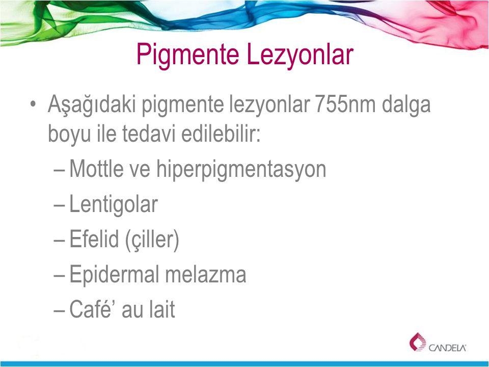 Pigmente Lezyonlar Aşağıdaki pigmente lezyonlar 755nm dalga boyu ile tedavi edilebilir: –Mottle ve hiperpigmentasyon –Lentigolar –Efelid (çiller) –Epi