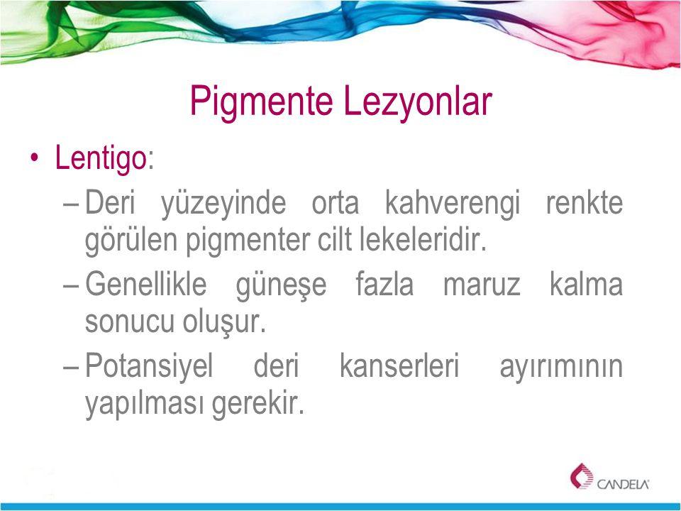 Pigmente Lezyonlar Lentigo: –Deri yüzeyinde orta kahverengi renkte görülen pigmenter cilt lekeleridir. –Genellikle güneşe fazla maruz kalma sonucu olu