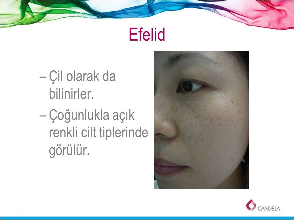 Efelid –Çil olarak da bilinirler. –Çoğunlukla açık renkli cilt tiplerinde görülür.