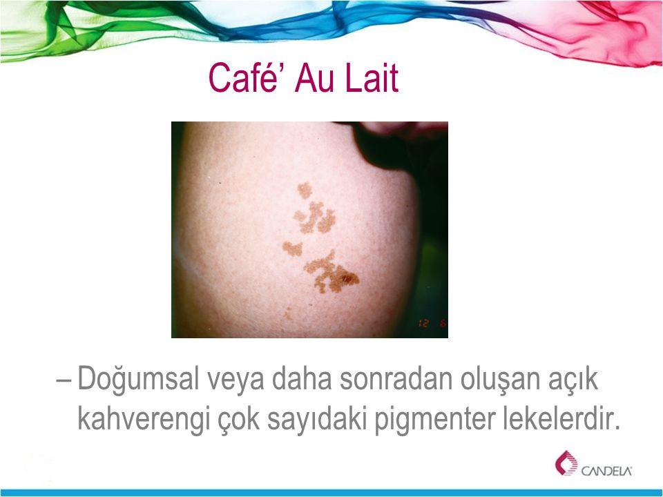Café' Au Lait –Doğumsal veya daha sonradan oluşan açık kahverengi çok sayıdaki pigmenter lekelerdir.