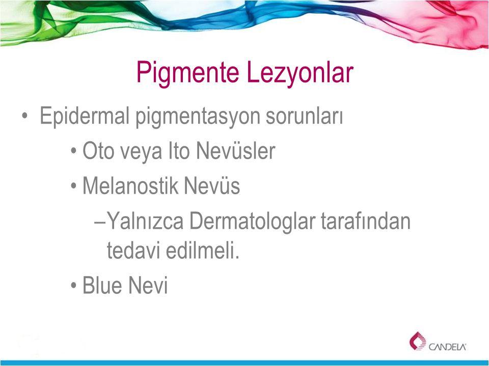 Pigmente Lezyonlar Epidermal pigmentasyon sorunları Oto veya Ito Nevüsler Melanostik Nevüs –Yalnızca Dermatologlar tarafından tedavi edilmeli. Blue Ne