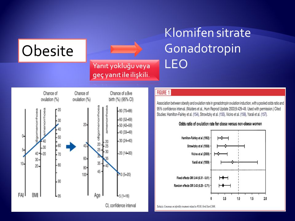Obesite Klomifen sitrate Gonadotropin LEO
