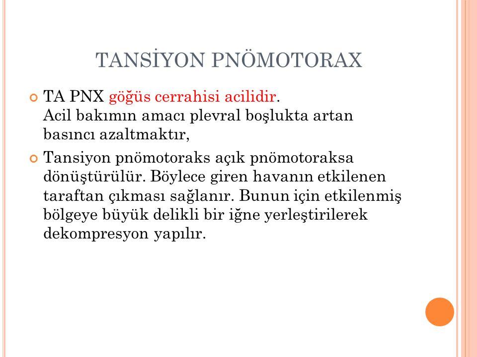 TANSİYON PNÖMOTORAX TA PNX göğüs cerrahisi acilidir. Acil bakımın amacı plevral boşlukta artan basıncı azaltmaktır, Tansiyon pnömotoraks açık pnömotor